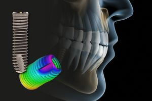 Optical 3D metrology for dental technology